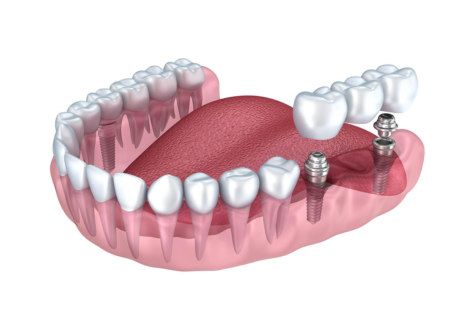 Implant dentaire : quelle est la durée de vie de cette pièce ?