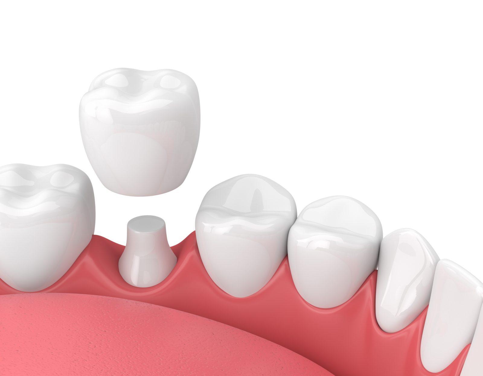 Implant dentaire : quels sont les principaux types ?